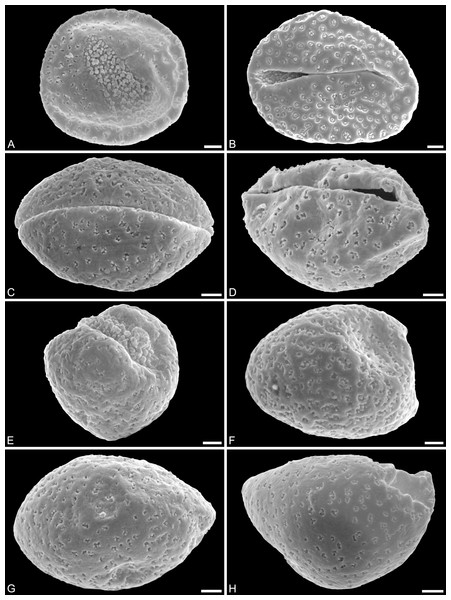 SEM micrographs of Saururus tuckerae pollen from the middle Eocene (c. 48 Ma) of Princeton, B.C., western Canada