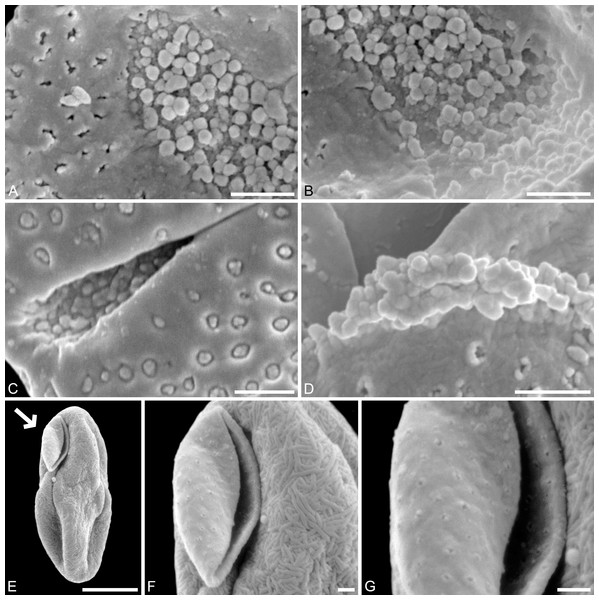 SEM micrographs of Saururus tuckerae (A–D; middle Eocene; Princeton, B.C.) and Saururus stoobensis sp. nov. from the Miocene Opencast clay pit, Stoob-Warasdorf-Forest, Burgenland, Austria (E–G).