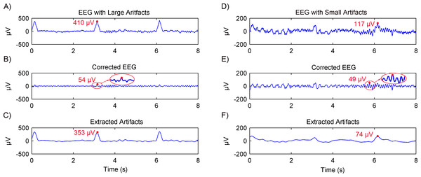 Results of artifacts removal from simulated EEG using the adaptive SSA.