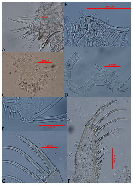 Photomicrographs of Euphilomedes biacutidens sp. nov., ♂.