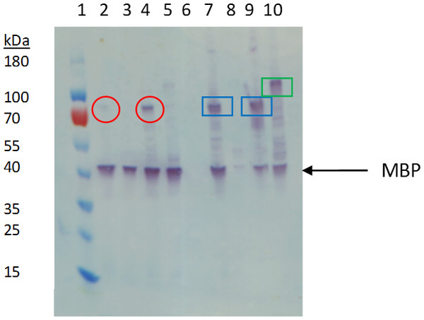 Western blot analysis of small-scale expression of FGFR2 and FGFR3 constructs using anti-MBP antibody.