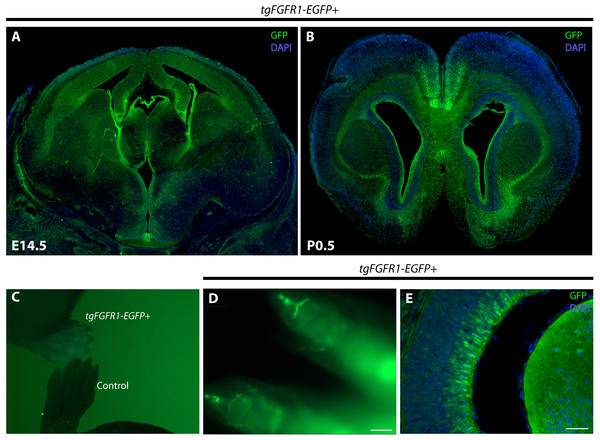 Fgfr1 is expressed in various regions throughout the developing E14.5 and perinatal P0.5 mouse brain.
