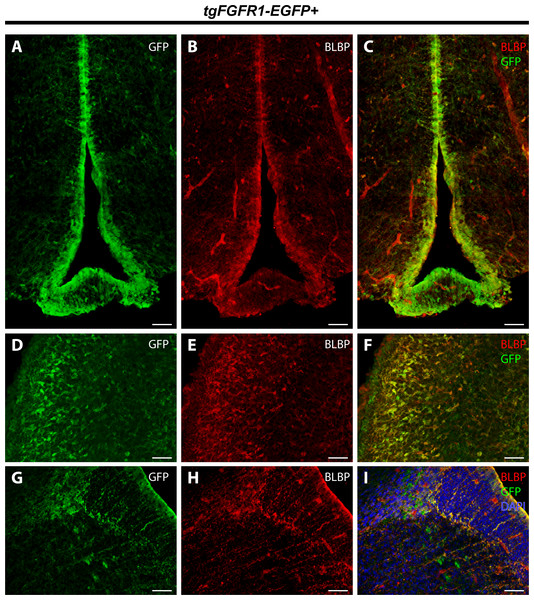 Fgfr1 is expressed in BLBP+ cells of the hypothalamus, cerebellum, and lateral pallial-subpallial boundary at P0.5.