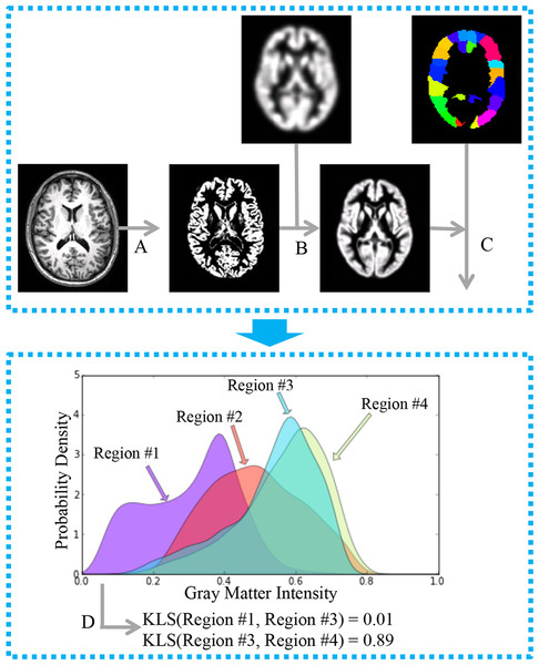 General workflow for the estimation of interregional morphological connectivity from single-subject MRI data.