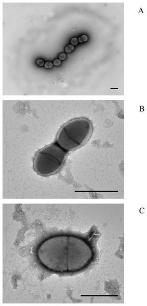 Electron micrographs of (A) mucoid serotype 37 pneumococcus PHESPV1034, (B) unusual serotype 37 PHENP00003, (C) BAA-960 Streptococcus pseudopneumoniae.
