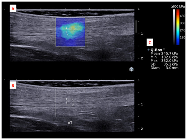 A shear wave elastogram (A) and the corresponding grey-scale ultra-sonogram (B) in the longitudinal axis of an Achilles tendon (AT) on the dominant leg of a subject after a heel drop exercise.