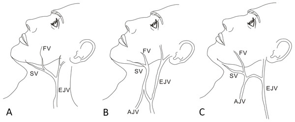 Schematic of venous drainage patterns into the EJV.