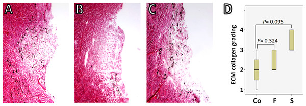 TM-ECM assessment by collagen staining.