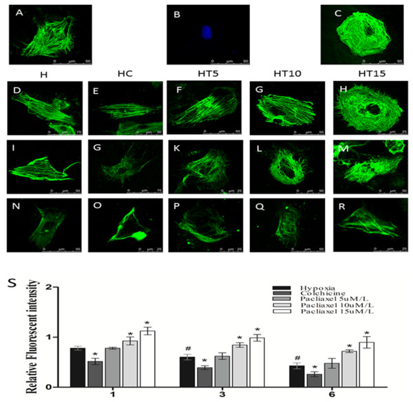 The influence of paclitaxel and colchicine on microtubular structure in cardiomyocytes exposed to different durations of hypoxia.