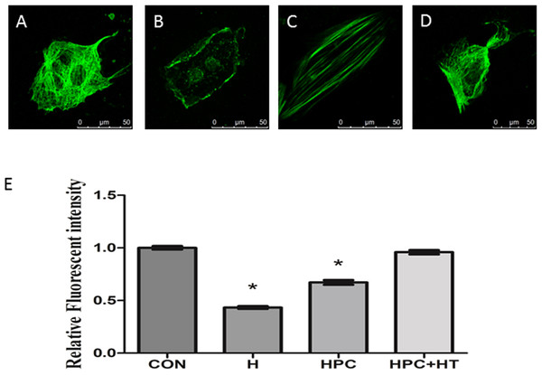 The influence of hypoxia preconditioning on microtubular structure injury in cardiomyocytes.