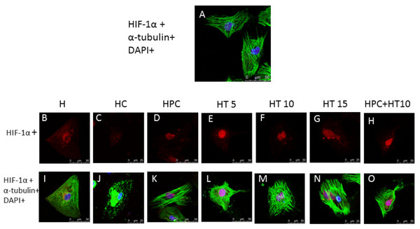 The influence of the changes in the microtubular structure of cardiomyocytes on HIF-1α endonuclear translocation.