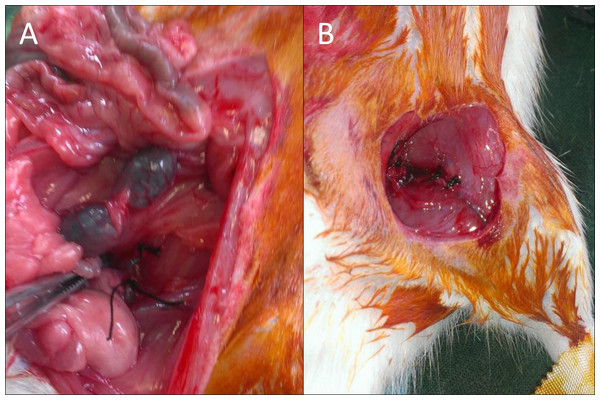 Images of the surgical procedure.