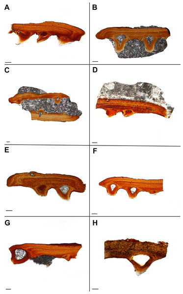 Histological sections showing the variation in palatal plate anatomy of ROM 76838.