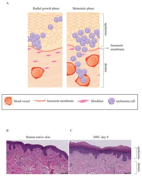 Three-dimensional representation of melanoma progression.