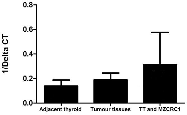 CTR mRNA expression in thyroid tissues and in two MTC cell lines.