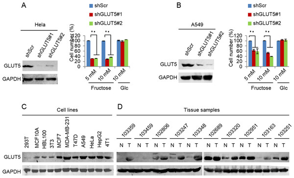 Down-regulated GLUT5 and its affection in other cancer cell lines.