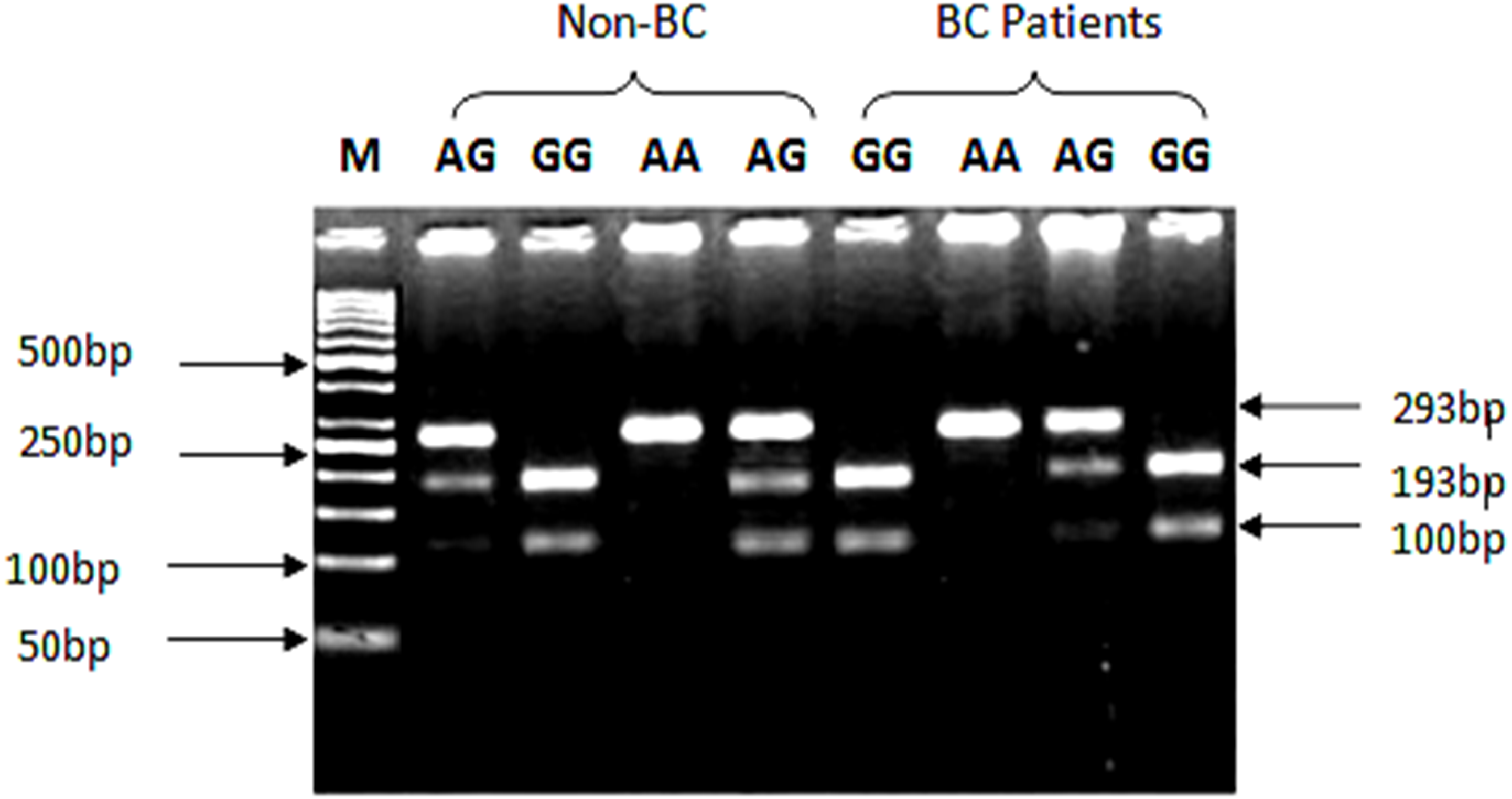 Association of rs1801157 single nucleotide polymorphism of
