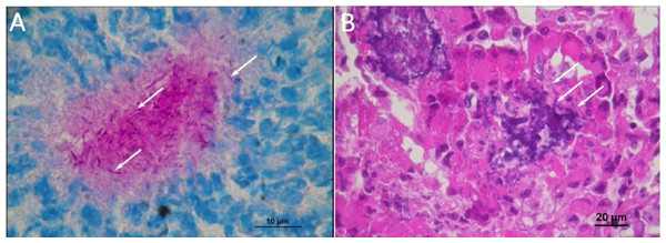 Histological observations on the mice that had died of sepsis after infection by N. cyriacigeorgica GUH-2.
