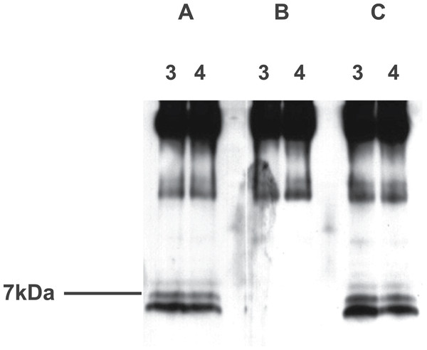 Western blot analysis of aqueous extract of rat hypothalamus purified using an immunoaffinity column, with preabsorption.