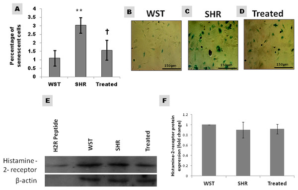 Effect of Famotidine on the senescence and Histamine-2-receptor expression of atrial CSCs.