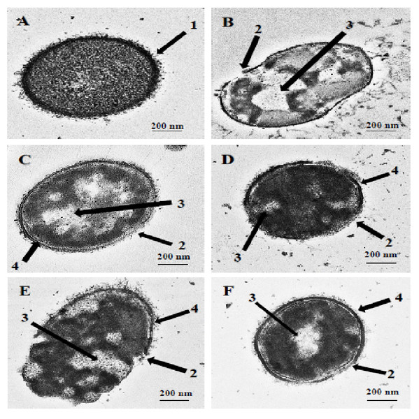 Transmission electron micrographs of S. pneumoniae after treatment with hybrid peptides.