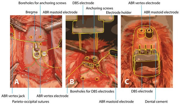 Surgery of implantation of ABR and DBS electrodes.