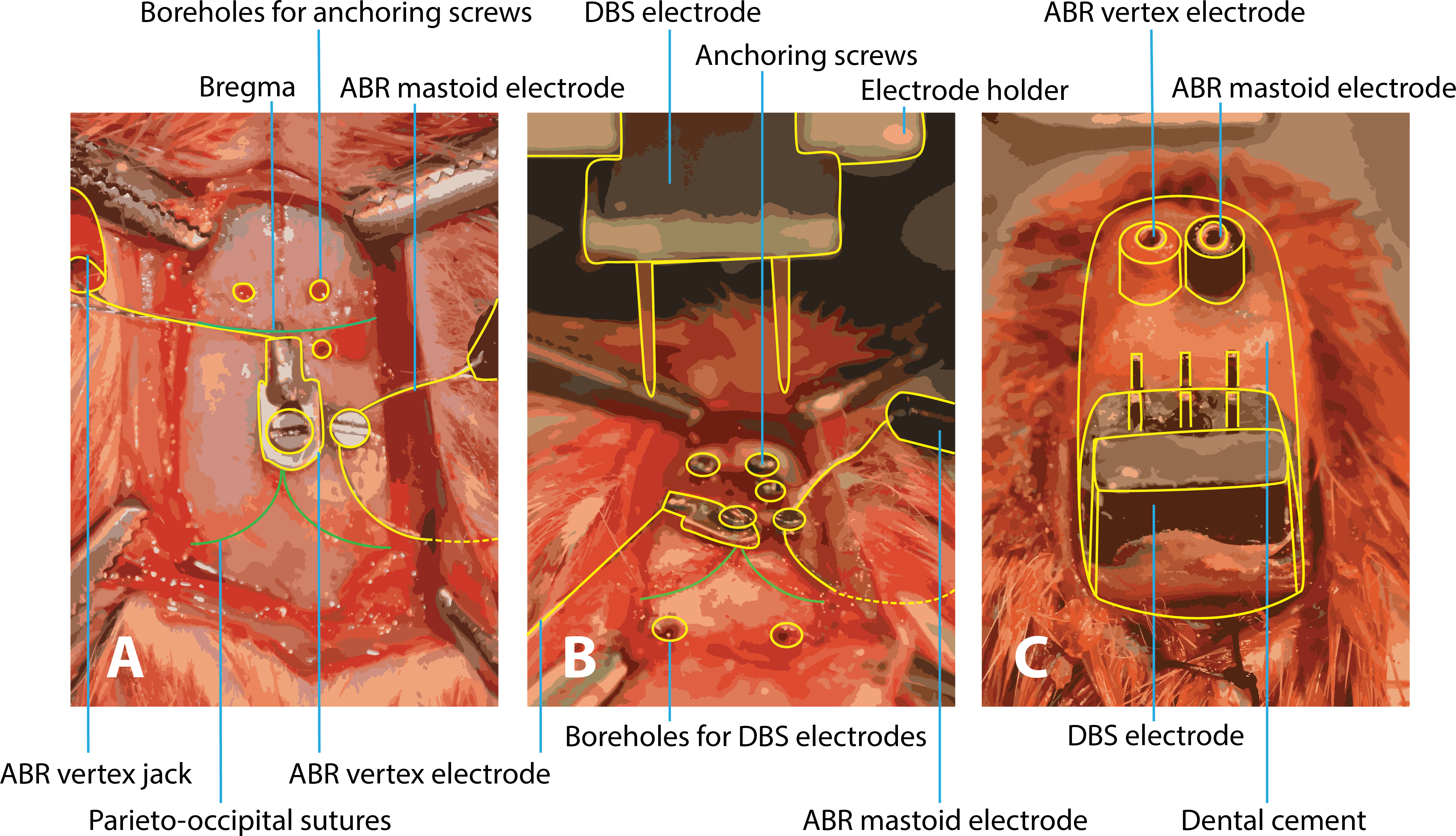 Hearing assessment during deep brain stimulation of the central ...