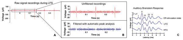 ABR signal processing.