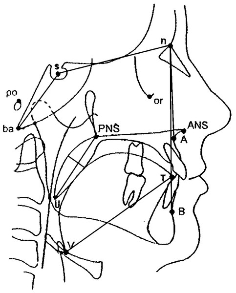 Diagram showing the anatomical points, lines, and angles used to evaluate craniofacial morphology.
