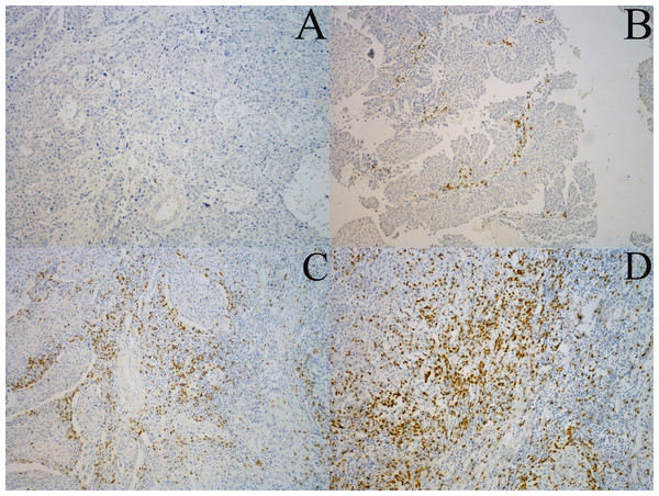 Representative examples of CD8+ TILs immunostaining.