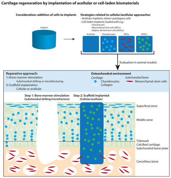 Illustration of articular cartilage regeneration by implantation of cellular and acellular biomaterials after applying bone marrow stimulation.