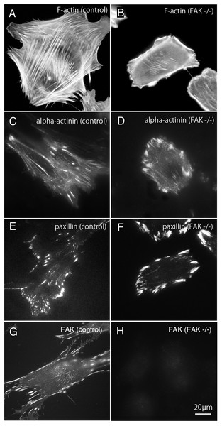Stress fibers and focal adhesions distributed in FAK−∕− fibroblasts.