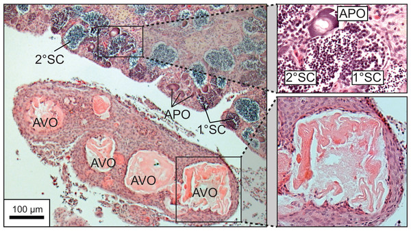 Photomicrograph of a histological section of a 370 mm specimen undergoing sexual transition from a functionally mature female to a maturing male, demonstrating structural characteristics of degenerative vitellogenic and primary oocytes (AVO, atretic vitellogenic oocyte; APO, atretic primary oocyte) in the presence of proliferating spermatogenic material (1° SC, primary spermatocytes; 2° SC, secondary spermatocytes).