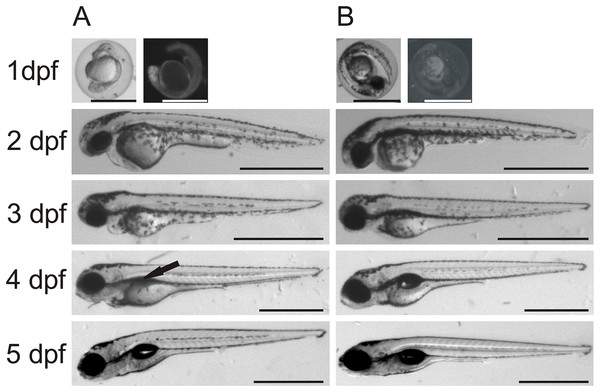 Comparison between morpholino-injected and wild-type zebrafish larvae.