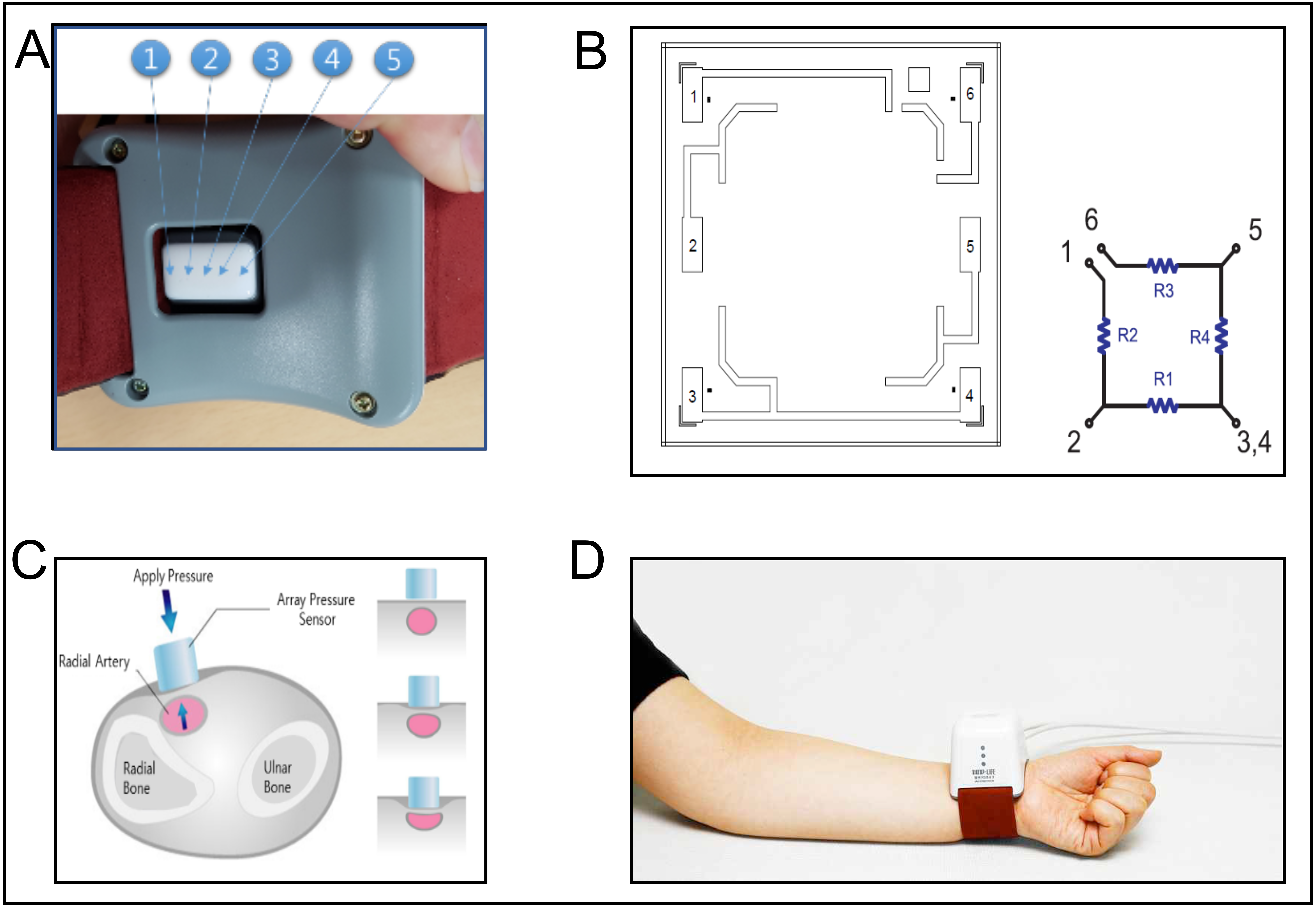 Comparison Between Radial Artery Tonometry Pulse Analyzer And Pulsed
