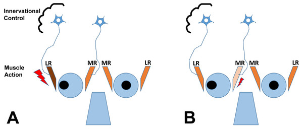 The cartoon depicts two scenarios (A and B) for a patient with exotropia, indicating muscle action of the agonist/antagonist horizontal eye muscles: the medial (MR) and lateral (LR) rectus muscles.