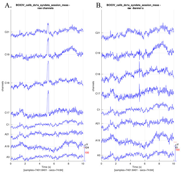 Raw EEG data centred around a synthetic blink (A) before preprocessing and (B) after preprocessing.