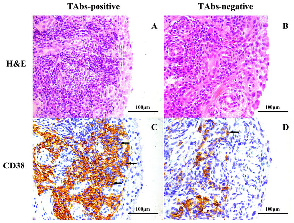 Representative images of H&E and immunohistochemical staining for CD38 in the synovium of RA patients based on TAb status.