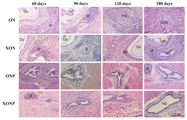 Histological changes in Ov-induced CCA hamsters with the control (ON), presence of xanthohumol (XON), presence of praziquantel (ONP) and presence of xanthohumol and praziquantel (XONP) groups.