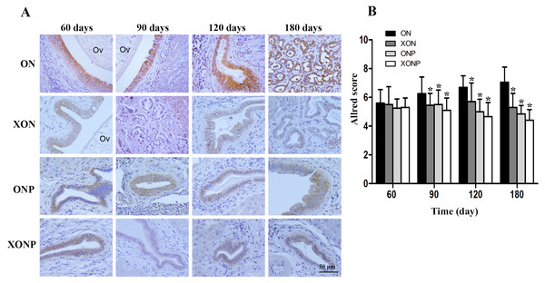 Immunohistochemistry for TfR-1 in CCA genesis hamsters.