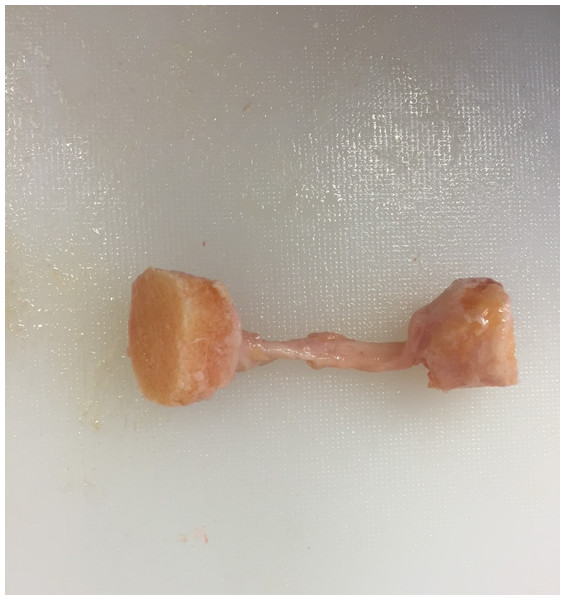 Example bone–ligament–bone sample.