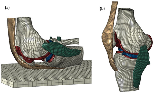 A finite element model of the knee joint.