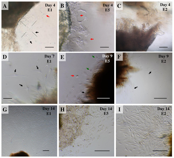 Outgrowth of primary fibroblasts and keratinocytes at P0 (passage zero) population from elephant skin explants.