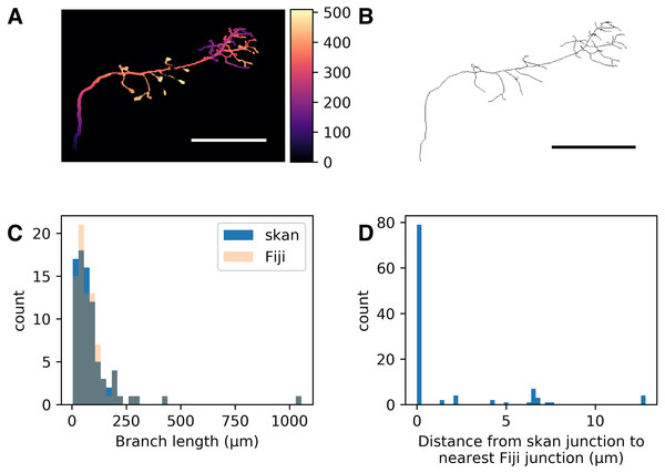 Comparison of skan and Fiji analysis results of the neuronal skeleton from olfactory projection neuron 1 (OP-1) from the DIADEM challenge.