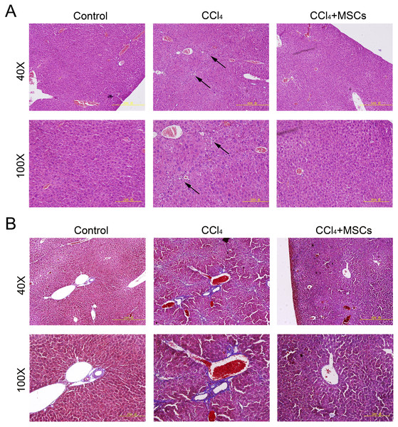 Heterogenic transplantation of MSCs ameliorates liver fibrosis in mice.