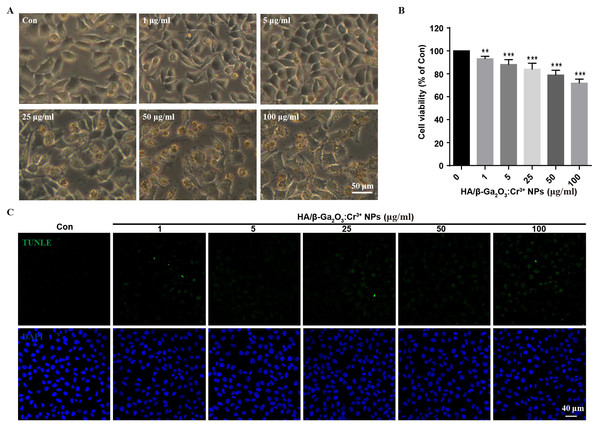 The changes of cell morphology and viability after exposure to HA/β-Ga2O3:Cr3+ NPs in SH-SY5Y cell line.