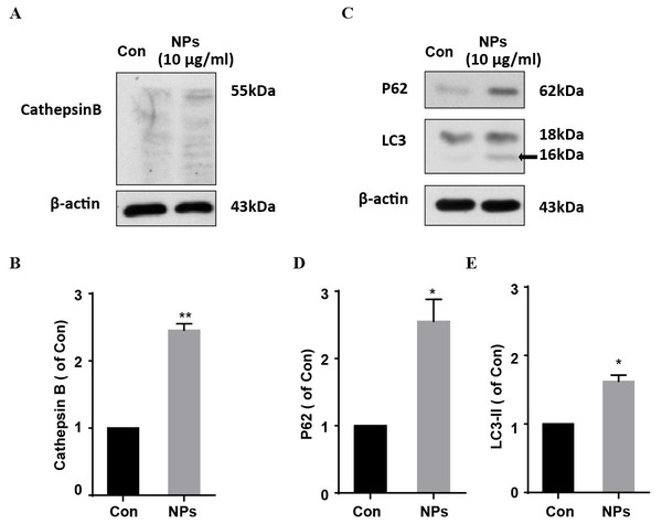 The effects of HA/β-Ga2O3:Cr3+ NPs on the autophagy signaling pathway.