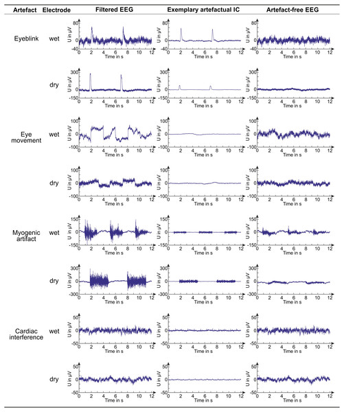 Examples of EEG signals before and after artifact removal.