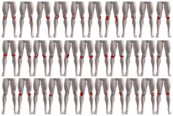 The variability of the 32 digital knee pain drawings, from patients diagnosed with PFP, used to assess pain area between paper and digitally acquired drawings.