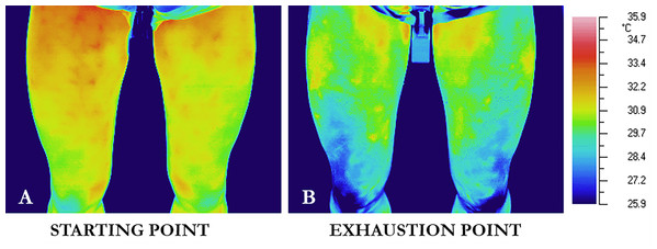 Thermal images of a representative participant at the initiation of the exercise (starting point, A), and immediately after the cessation of the exercise (exhaustion point, B).